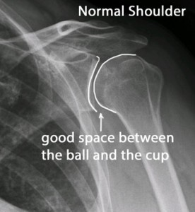 X-ray of normal shoulder