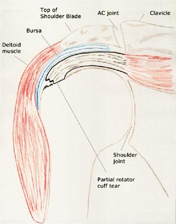 Partial Rotator Cuff Tears | Dr. Michael Codsi | Patient ...